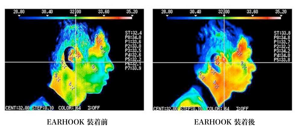耳ツボ刺激するリラクゼーショングッズのネオジム磁石が作用する神経とその効果