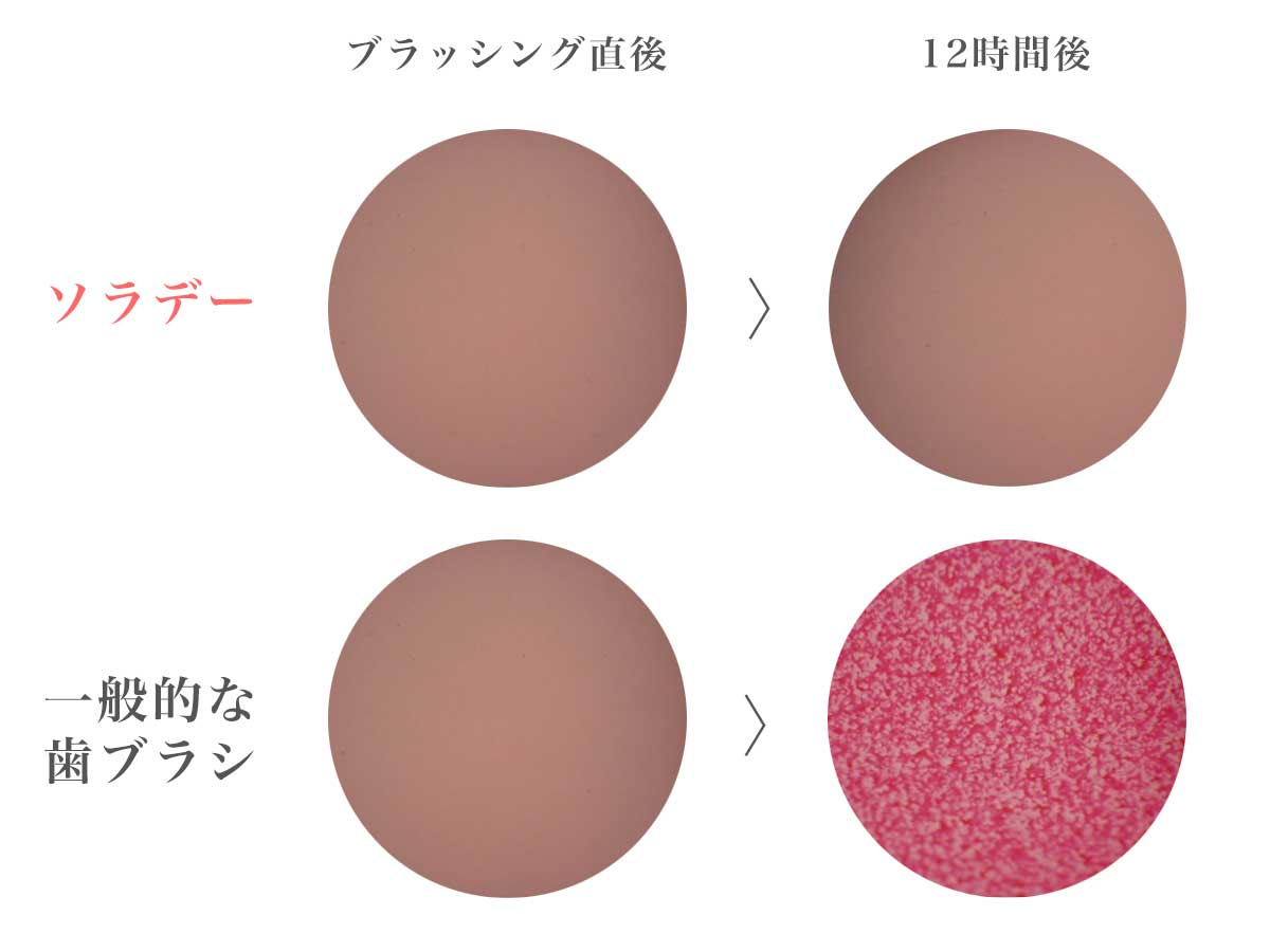 岡山大学歯学部でテスト済み。『SOLADEY』の光触媒効果は、歴然。光触媒の効果で、歯磨き粉なしでも歯垢がとれる「電動歯ブラシ」|SOLADEY