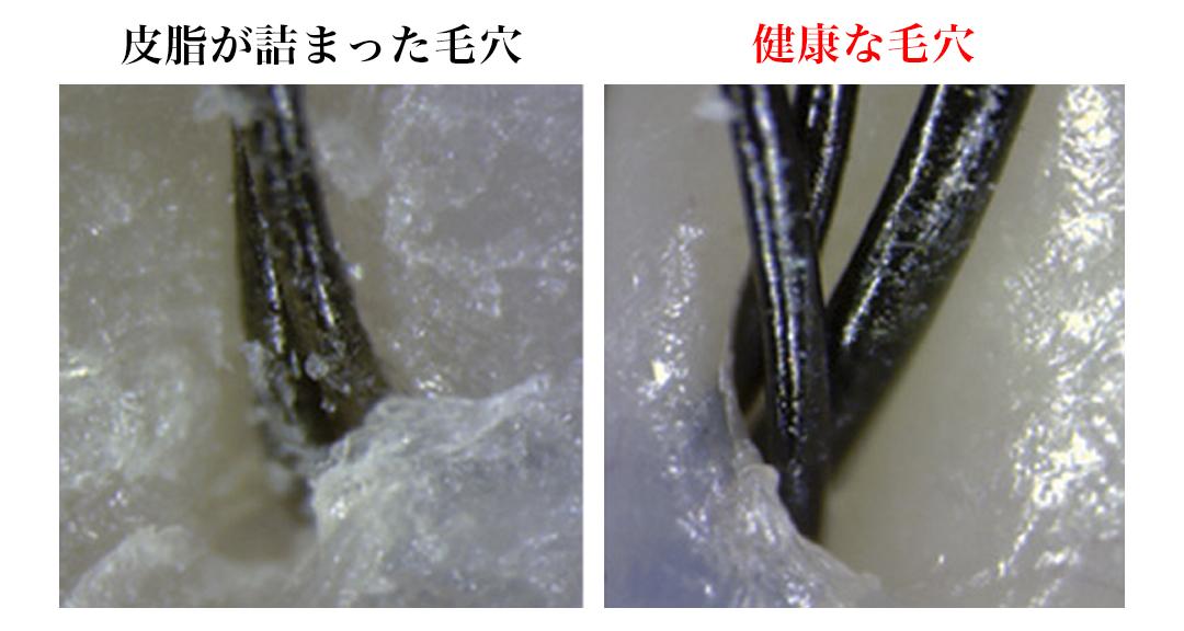 376本ものピンが、ぎっしり植え込んであります。スカルプブラシ(育毛ブラシ)|SCALP BRUSH(スカルプブラシ)
