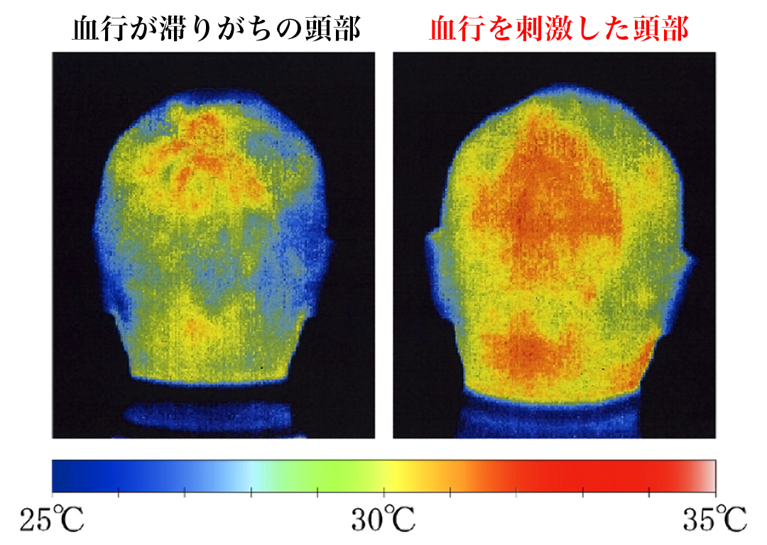 頭皮の血行を刺激することで、どんよりしていた頭や目、首すじまで、軽くなったように感じられるはずです。スカルプブラシ(育毛ブラシ)|SCALP BRUSH(スカルプブラシ)